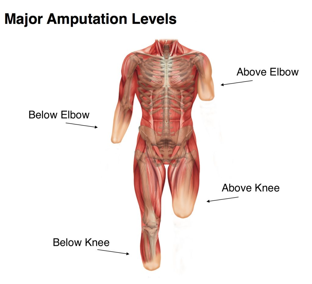 amputation_levels_guide